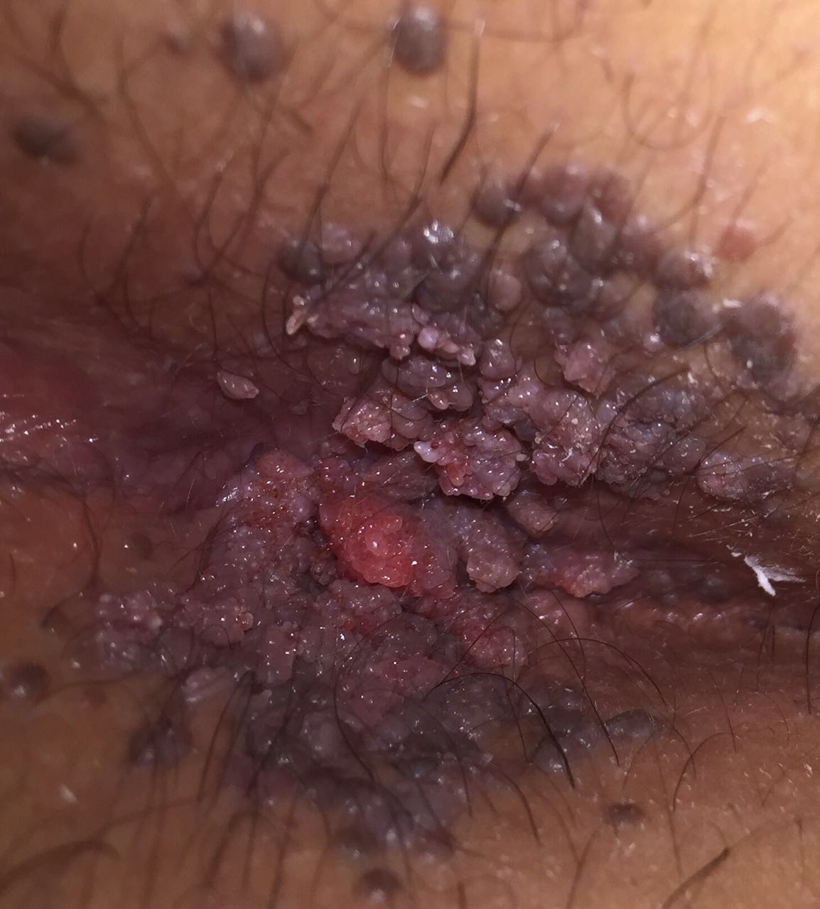 Treatment for anal warts
